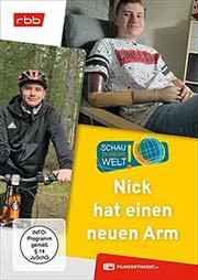 Nick hat einen neuen Arm - Ein Unterrichtsmedium auf DVD